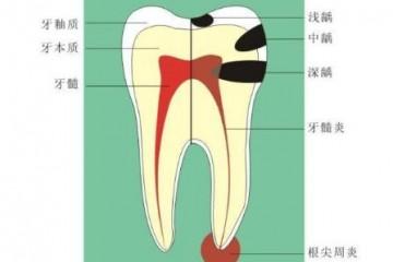 希芸舒缓防蛀牙膏防龋齿