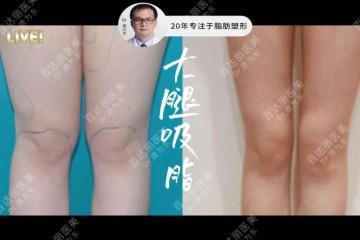 唐为东医生首创低压柔性吸脂安全满足消费者美体需求