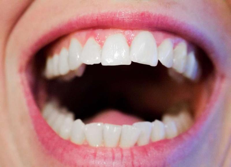 整牙能改善下巴后缩吗下巴后缩能通过整牙来改善吗